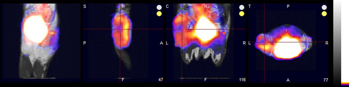BIOTIC-Tumor-Images-web