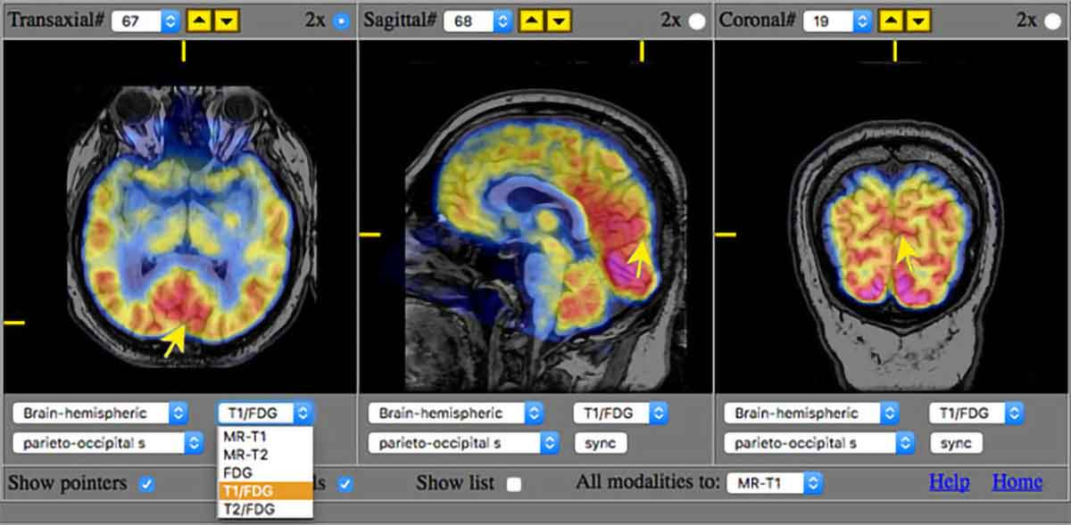 Overlaid PET FDG data onto MRI scan shown in the online Whole Brain Atlas.