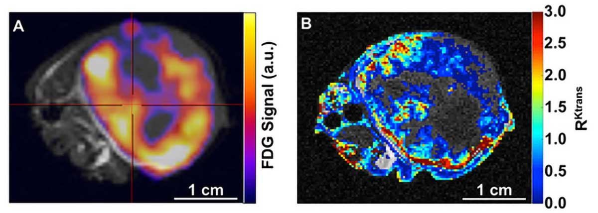 A mixture of 18F-FDG PET agent and MultiHance® MRI agent was injected IV into a flank tumor model of human A549 lung cancer. The large tumor and a small portion of the mouse body are shown in this axial image orientation. Left: Average 18F-FDG PET signal overlaid on an anatomical MR image shows relative glucose uptake. Right: Dynamic Contrast Enhancement (DCE) MRI was used to construct a map of relative vascular permeability. Images courtesy of University of Arizona.